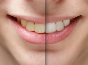 Why is teeth whitening a good option in Roswell?