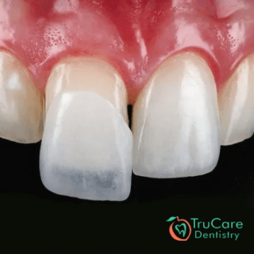 7 Important things to consider before getting dental veneers