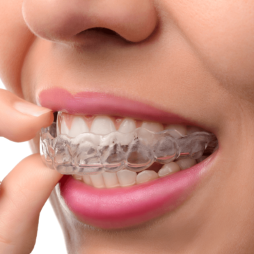 What are the advantages of Invisalign? Can clear-aligners prove better than metal braces?