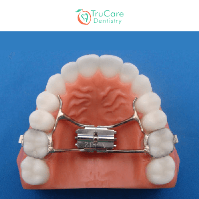 All about Palate Expanders