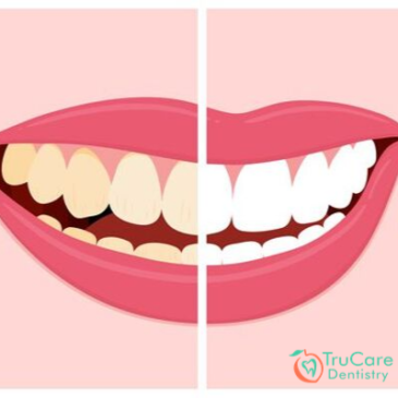 Tooth Discoloration: Common Causes of Tooth Discoloration