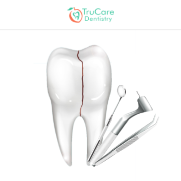 Cracked Tooth: Its Causes and Ways to Tackle this Dental Issue