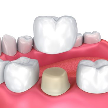 What is a Crown? How can a Dental Crown Protect Your Weak Tooth?