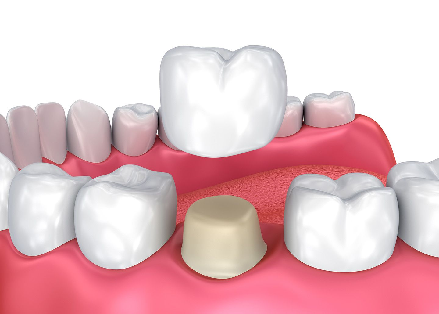 What is a Crown? How can a Dental Crown Protect Your Weak Tooth? – TruCare  Dentistry Roswell