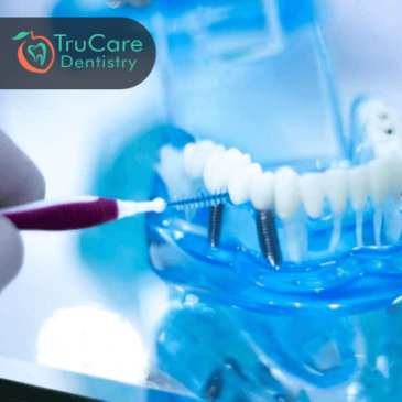 How To Keep Your Dental Implant Clean And Hygienic?
