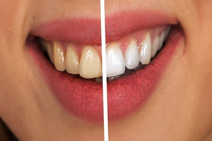 How To Prevent Plaque, Tartar & Harmful Bacteria From Mouth?