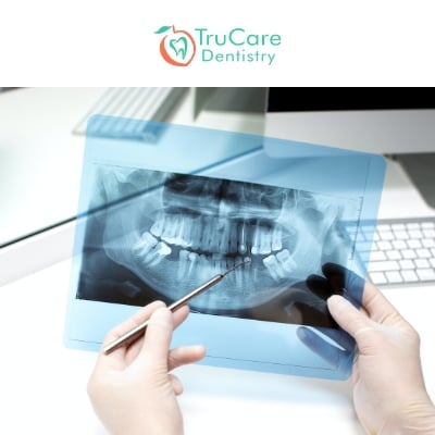 Dental X-Rays Are Essential