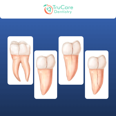 Everything about Cracked Teeth