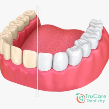 FAQs on Teeth Staining