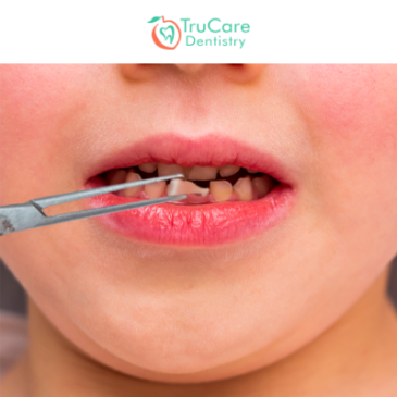A Guide about Baby Tooth Extraction Procedure, its Causes, and Ways to Deal with it