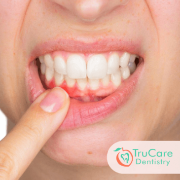 Get your Gum Treatment done right at TruCare Dentistry Roswell