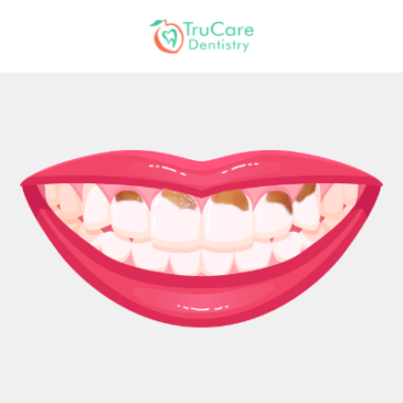 Causes, Symptoms and Treatments for Gum Line Cavity at General Dentistry Office