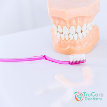 How to Clean Your Dentures and Prevent Bacteria From Building Up