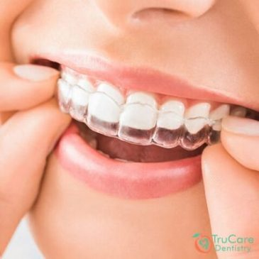 How to Straighten Your Teeth? 3 Proven and Safe Methods
