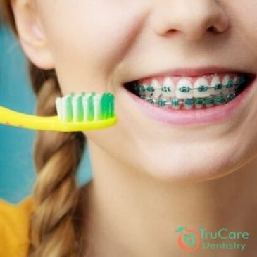 How to brush teeth with braces?