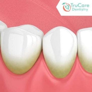 What is tartar? How to prevent tartar buildup?