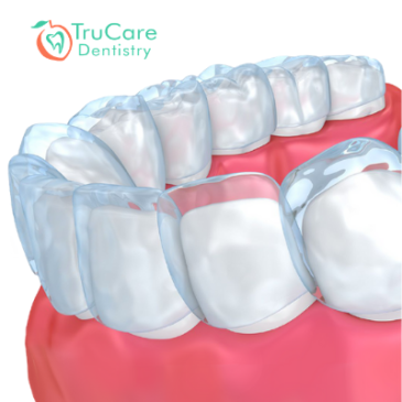 Medical Benefits of Invisalign: Straight Teeth Are Not Just For a Pretty Smile