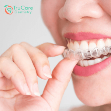 How long does Invisalign take to make your teeth beautiful?