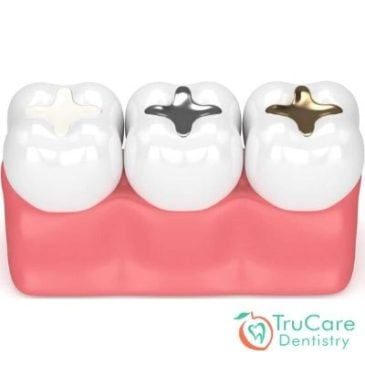 Is replacing amalgam fillings with tooth-colored composite a complicated procedure?