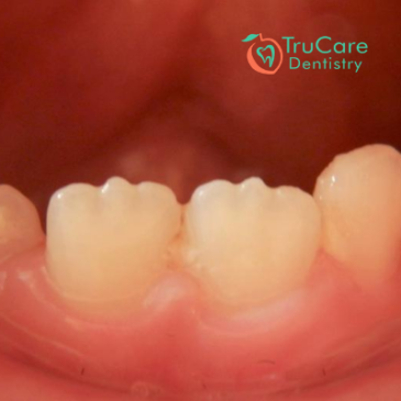 Mamelons on Teeth: What are they? How to remove them?