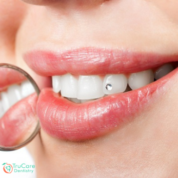 Here's everything you should know about oral piercings and its impact on dental hygiene