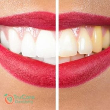 Pale Gums:  A Serious Oral Health Condition and Its Key Causes