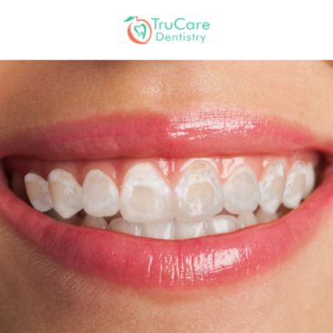 Post-Braces Stains On Teeth: Cause And Treatment