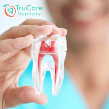 How long does the root canal treatment take? and what is involved in the procedure?