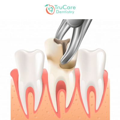 Save Your Tooth Or Pull It Which One Is Ideal