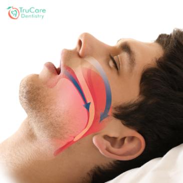 5 Ways To Get Better Sleep While Having Sleep Apnea