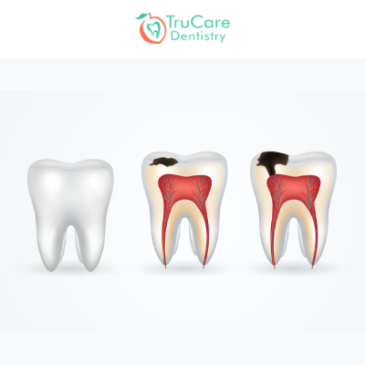 The Stages of Tooth Decay and How to Prevent It?
