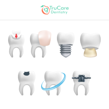 7 Different Things You Didn't Know About Tooth Restoration