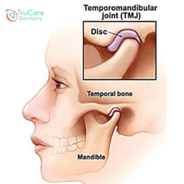 Can TMJ disorder prove to be the culprit behind frequent headaches? Here's the answer