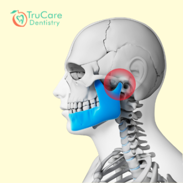 10 TMJ Disorder tips by the dentist
