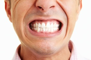 Here's Everything about Teeth Grinding and Treatment for the Same