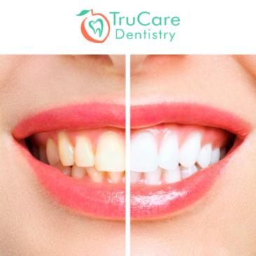 Teeth Whitening: 7 Mistakes to Avoid