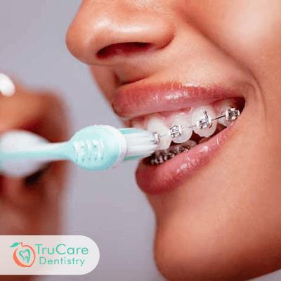 Teeth staining Invisalign Braces treatment