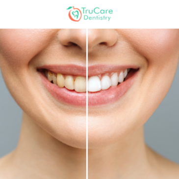 Here's a Look at Factors That Mitigate The Benefits of Teeth Whitening