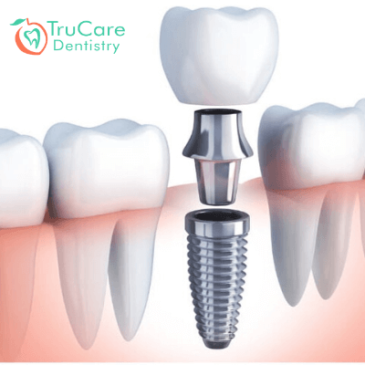 The Different Types of Dental Implants and Choosing One Right For You