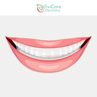 Transparent teeth