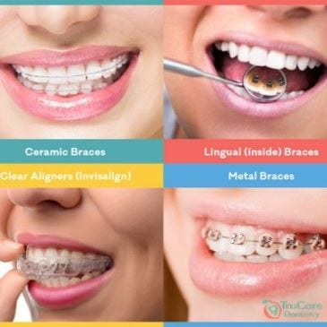 Types of Braces and which one is the best for you?