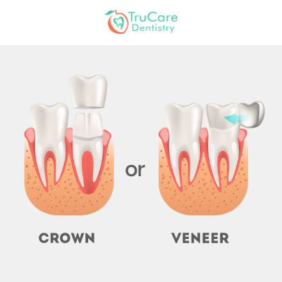 Veneers or Crowns: Which Is Right For Me