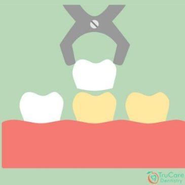 Can Veneers and Lumineers bring your teeth in shape before braces?