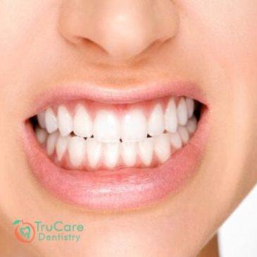 Ways You Can Stop Grinding Teeth During Sleep