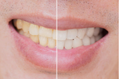 What Triggers Tooth Discoloration? Which Habits Can Help in Avoiding Teeth Stains?