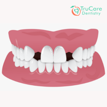Are you worried about a gap between teeth? Here's a list of best treatment options