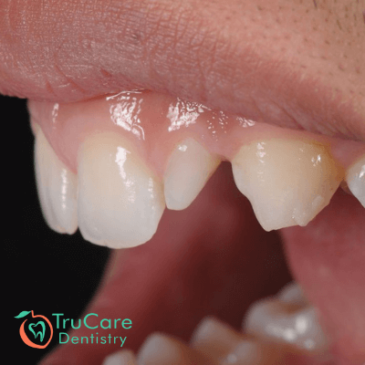 What are peg shaped teeth? Definition, Causes, Treatment