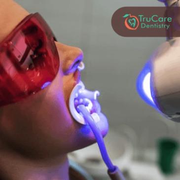Professional Teeth Whitening vs. Home Teeth Whitening