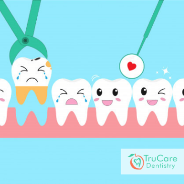 Is the replacement of Missing Teeth Necessary?