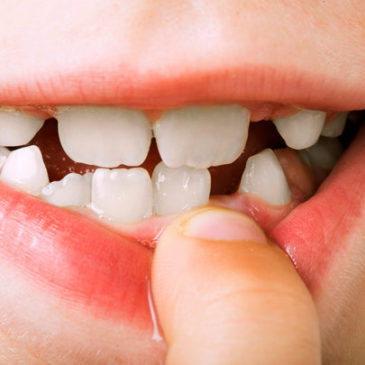 Basic First Aid For Some Of The Common Tooth Injuries